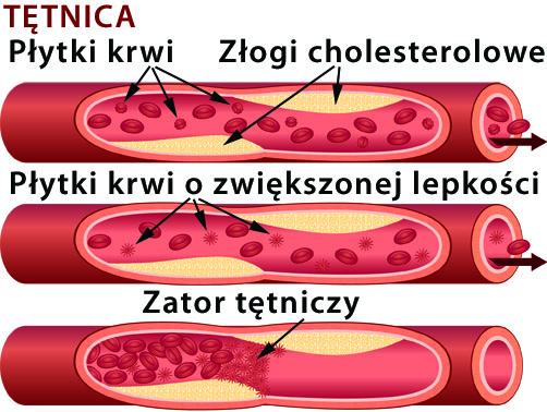 polifenum arterie